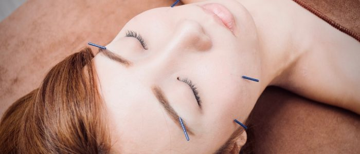 How to get ready for an acupuncture treatment